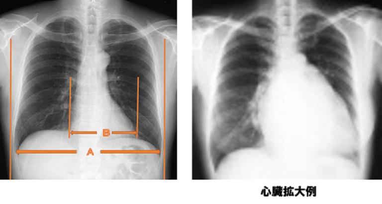 不整脈の検査と治療