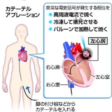 頻脈性不整脈の治療