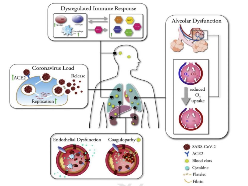 糖尿病では新型コロナウイルスに感染すると重症化しやすい理由をまとめた図