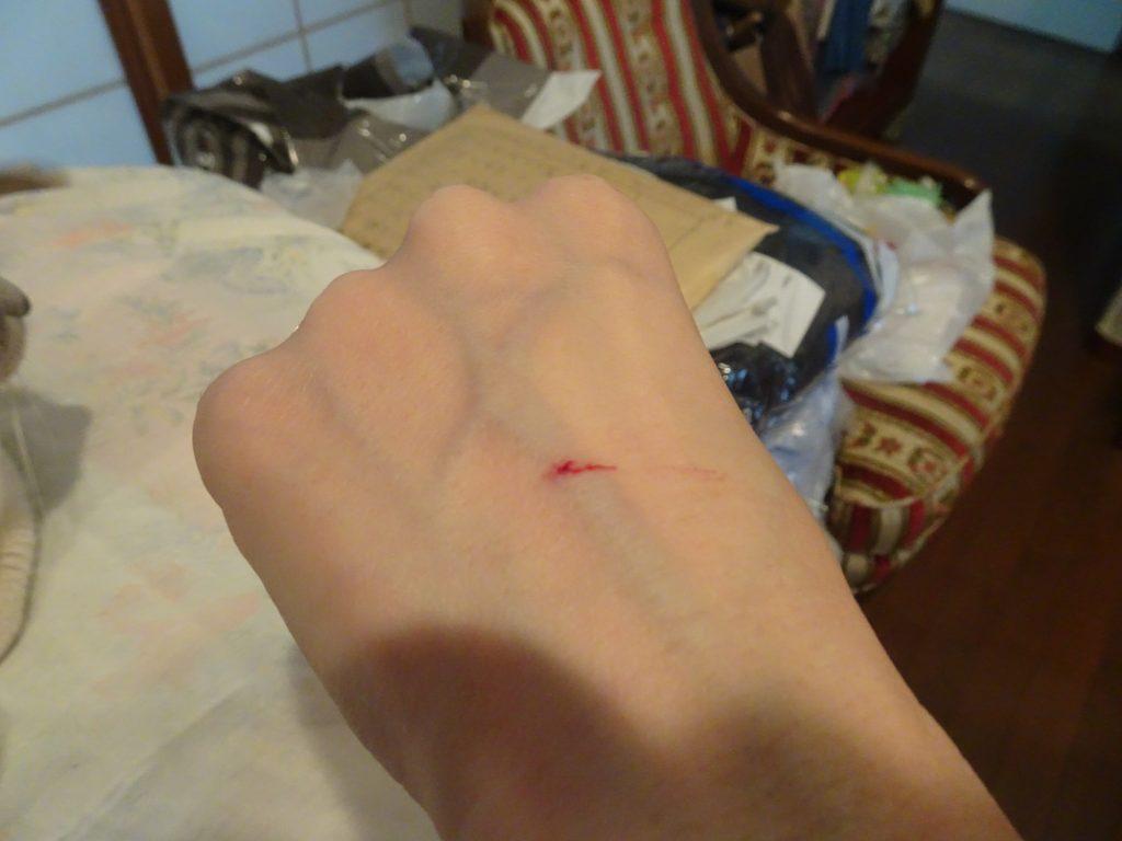 手の甲の傷跡