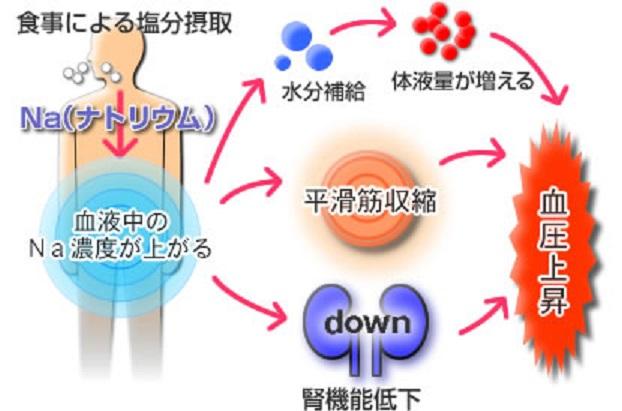 塩分の摂りすぎによる健康への悪影響についてまとめた図