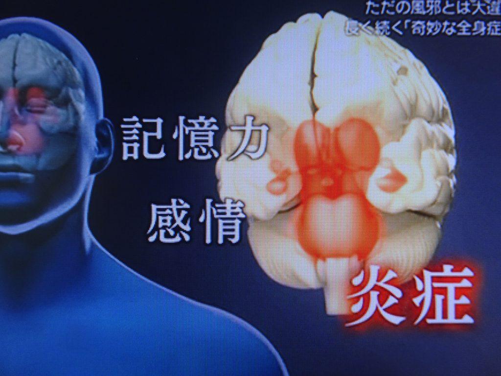 記憶力 感情を司る脳の部位に炎症が起きていることを示すMRI像