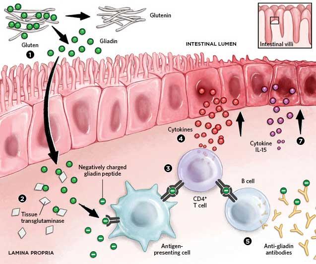 グルテンが消化管粘膜で免疫反応を誘導することを示す図