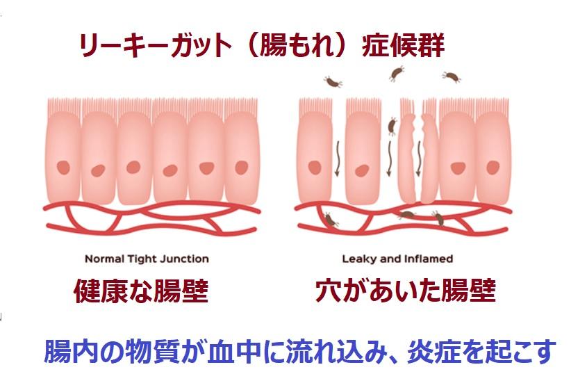 リーキーガット症候群の病態について説明する図