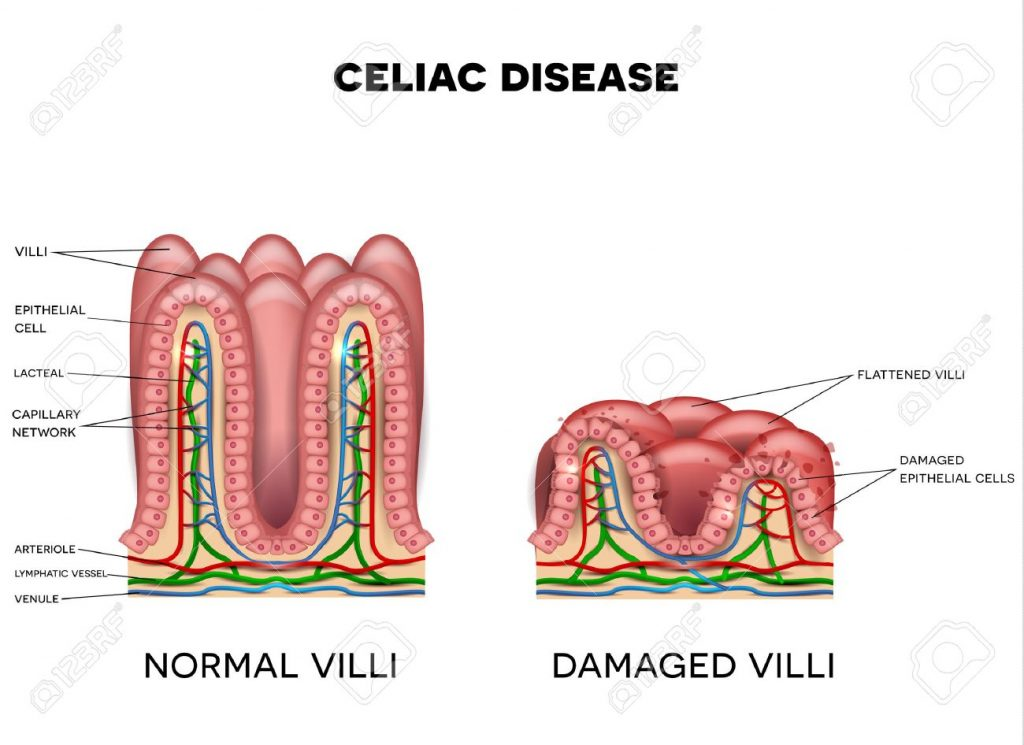 セリアック病における消化管粘膜の障害について説明した図