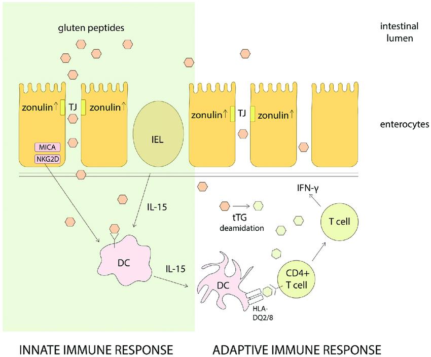 自然免疫反応の異常について説明する図