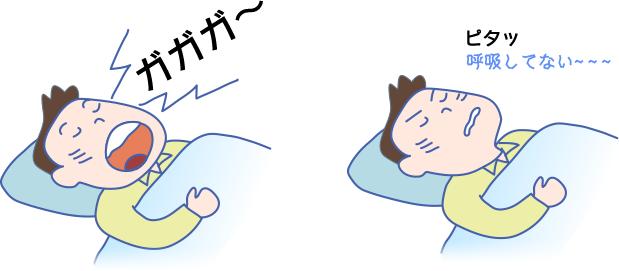 いびき 無呼吸について説明した図