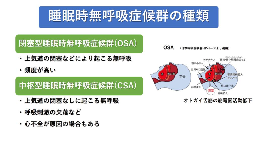 睡眠時無呼吸症候群の病型について説明した図