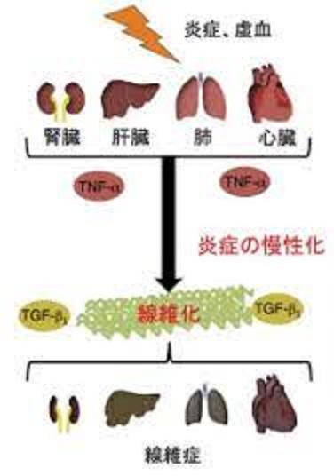 さまざまな臓器で慢性炎症により線維化が生じることを示した図