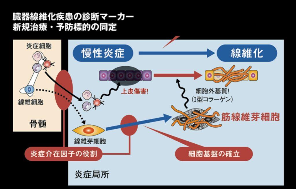 ECMの異常蓄積が起こる機序についてまとめた図