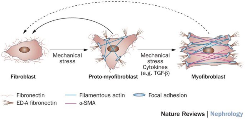 線維化の主役 筋線維芽細胞