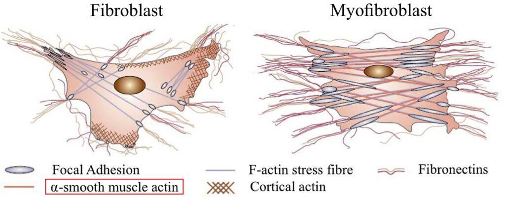 線維芽細胞と筋線維芽細胞の差異を示した図