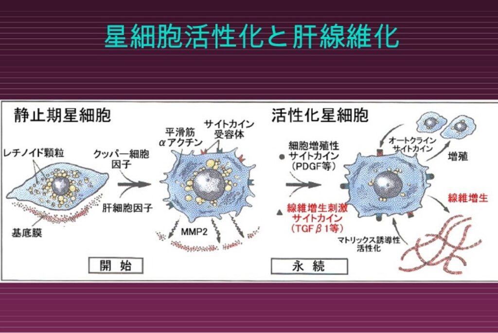 HSCの活性化と肝線維化についてまとめた図