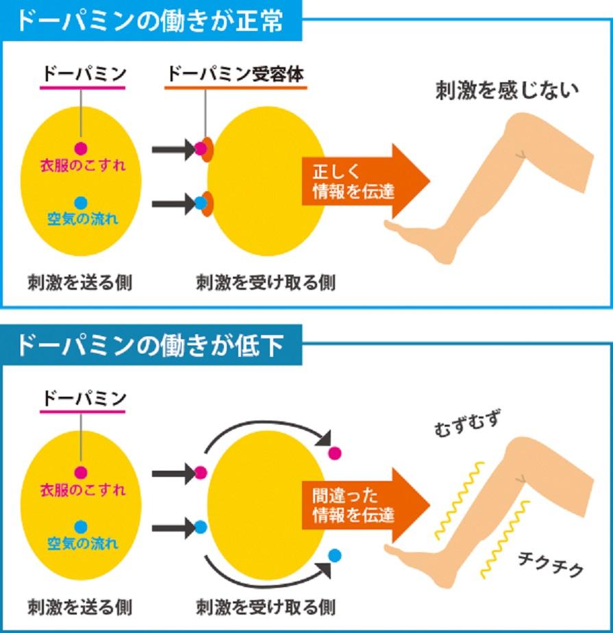 ドパミンの働きの低下と病態について説明した図