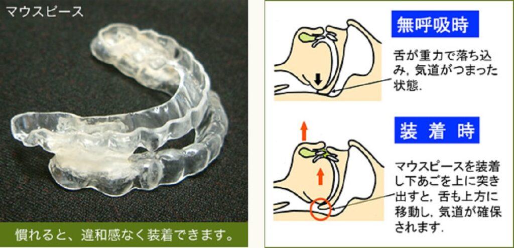 マウスピース 口腔内装置