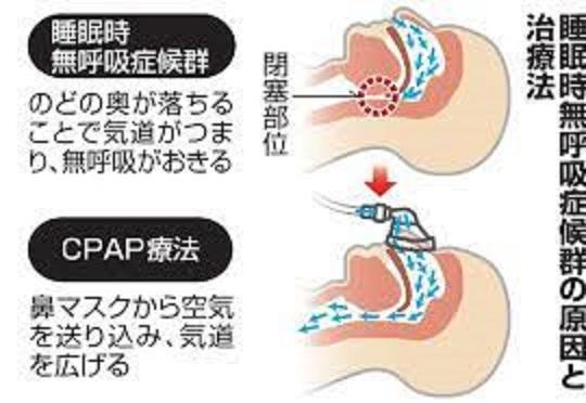 CPAPの原理を説明する図
