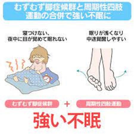 周期性四肢運動障害の睡眠障害について説明した図