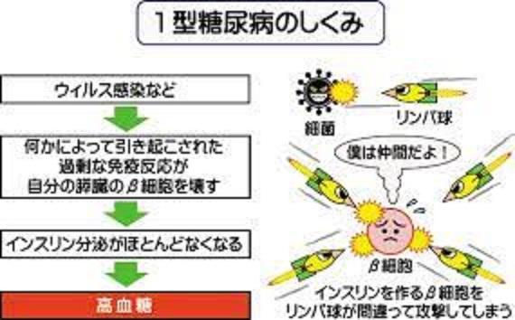 自己免疫性の病態を説明する図・その2
