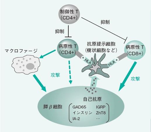 自己免疫反応によるβ細胞の破壊機序を説明した図