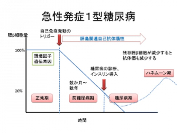 急性発症型の臨床経過をまとめた図