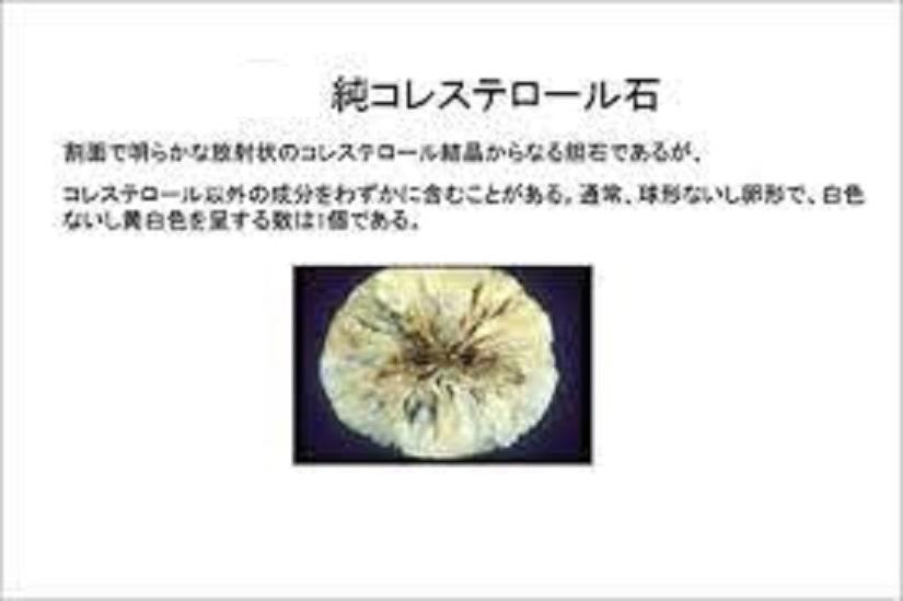 コレステロール石の写真
