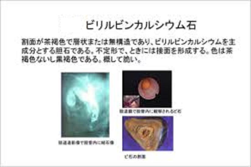 ビリルビンカルシウム石の写真