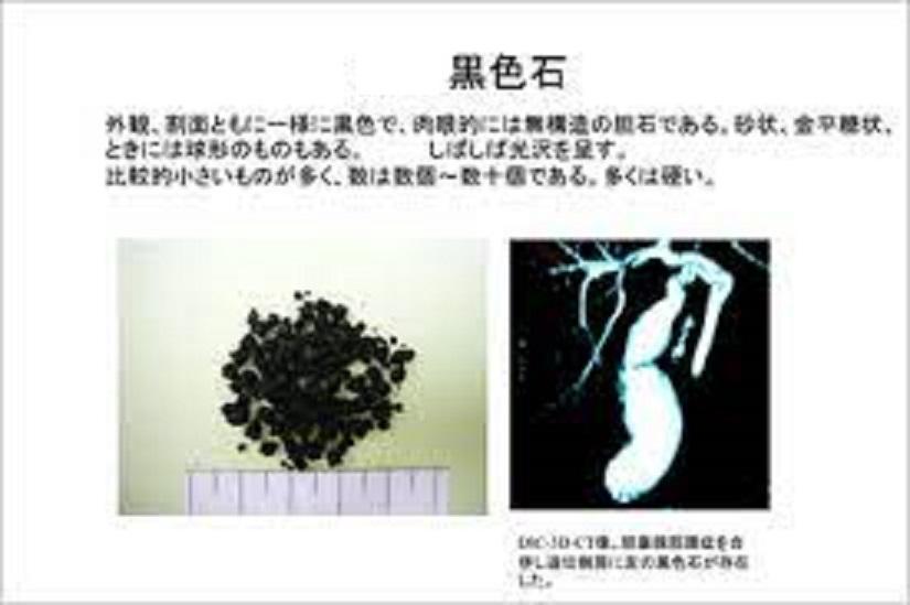黒色石の写真