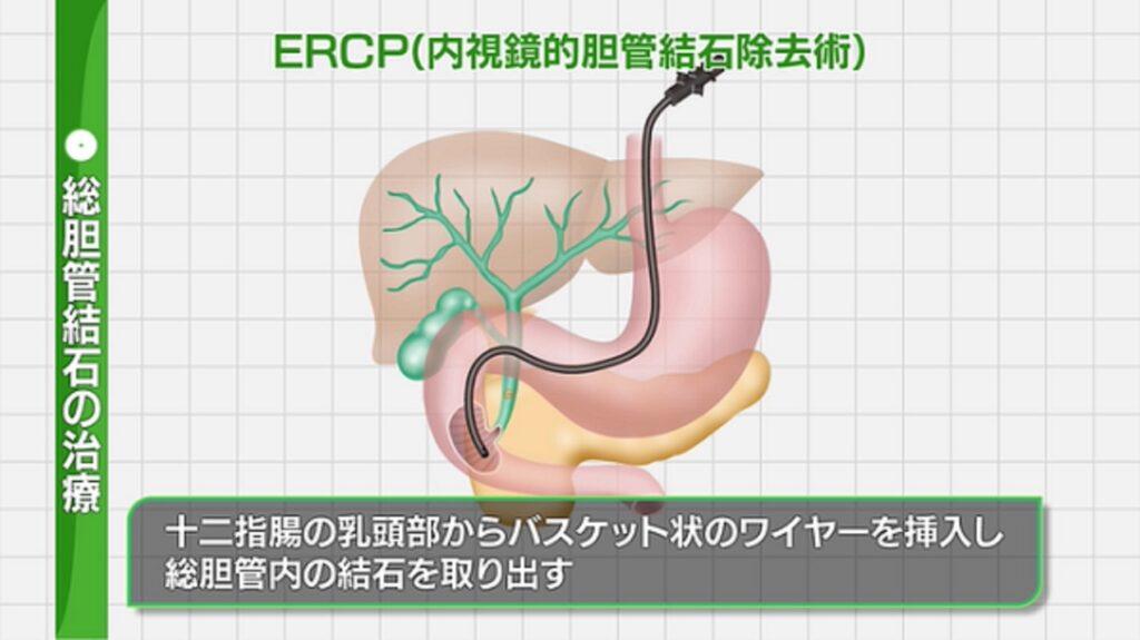 内視鏡的総胆管結石除去術について説明した図
