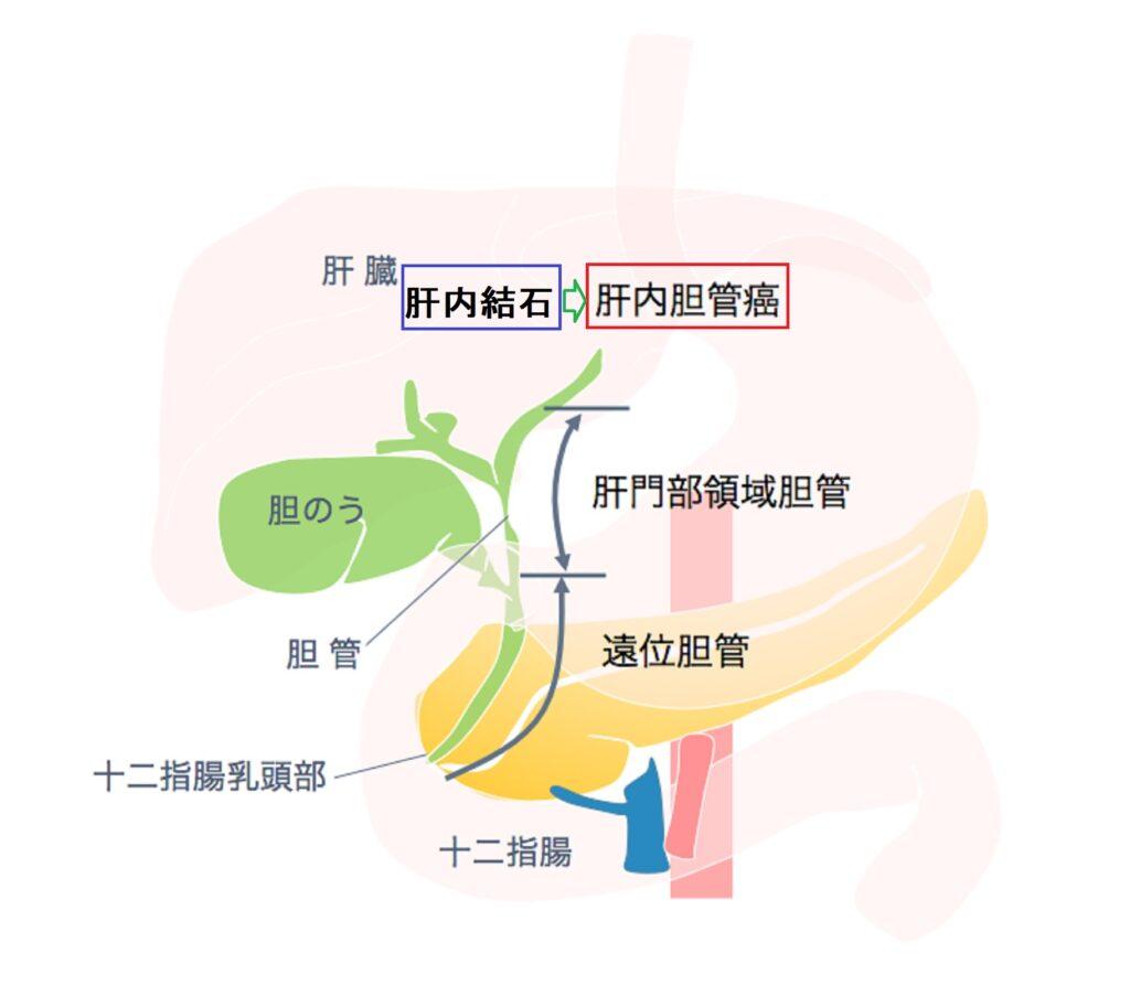 肝内結石症と肝内胆管がんの位置関係を示す地図