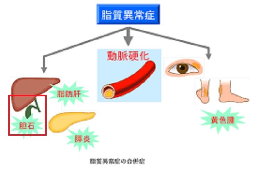 高トリグリセリド血症と胆石の関係を示す図