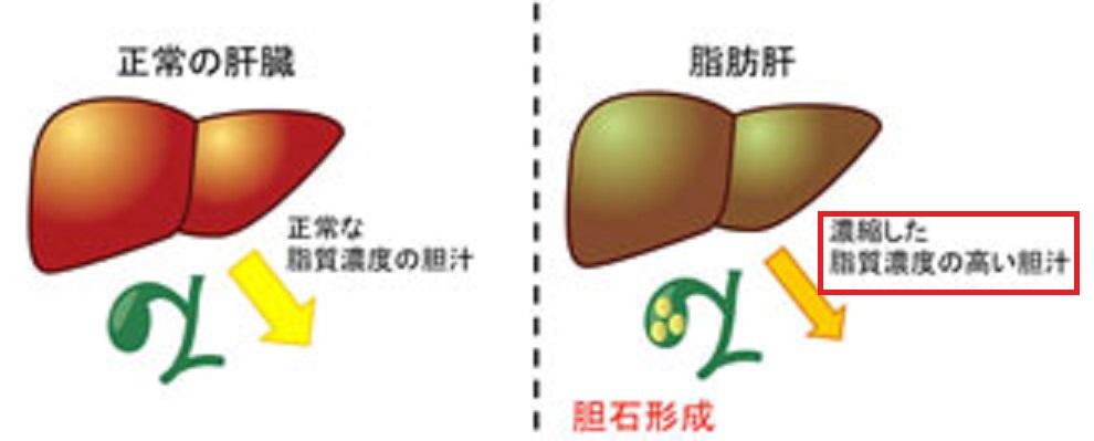 脂肪性肝炎と胆石の関係を示す図