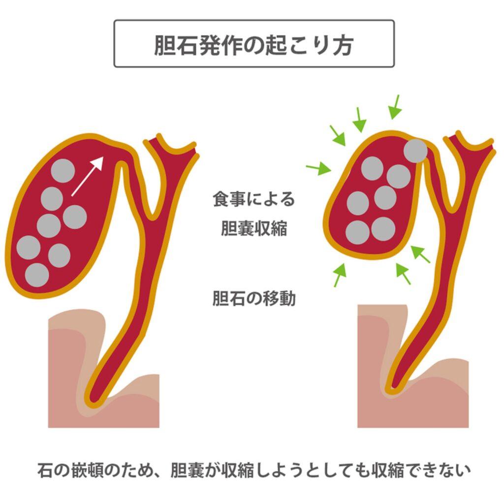 胆石発作の起こり方を示した図