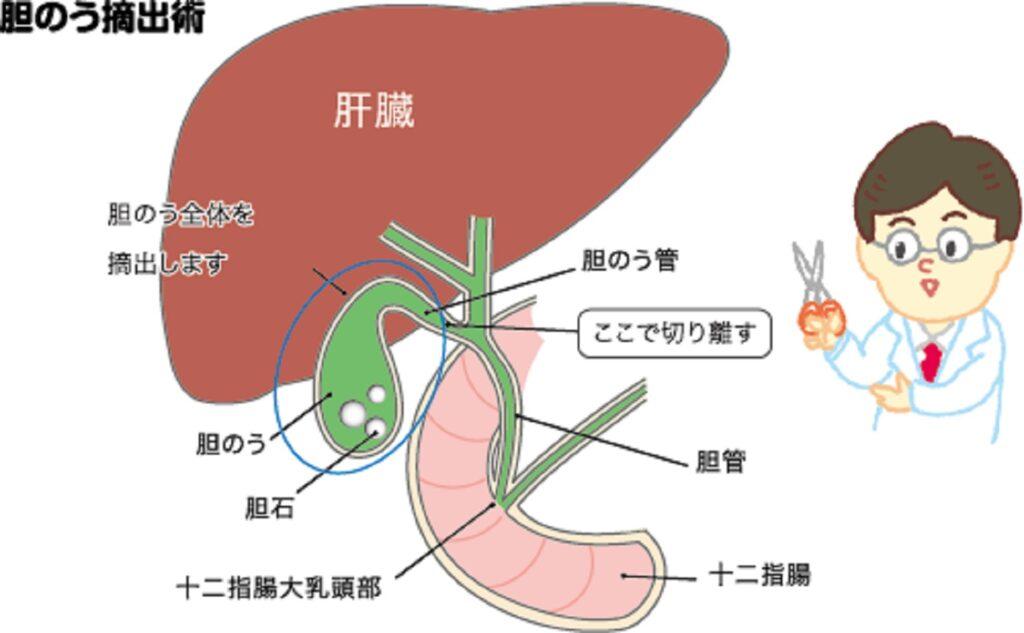 胆のう摘出術について説明した図