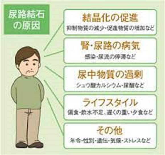 尿路結石の原因となる疾患を示した図