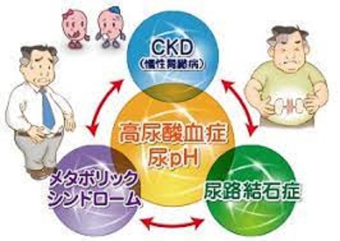 高尿酸血症ではメタボリック症候群も起きやすいことを示す図