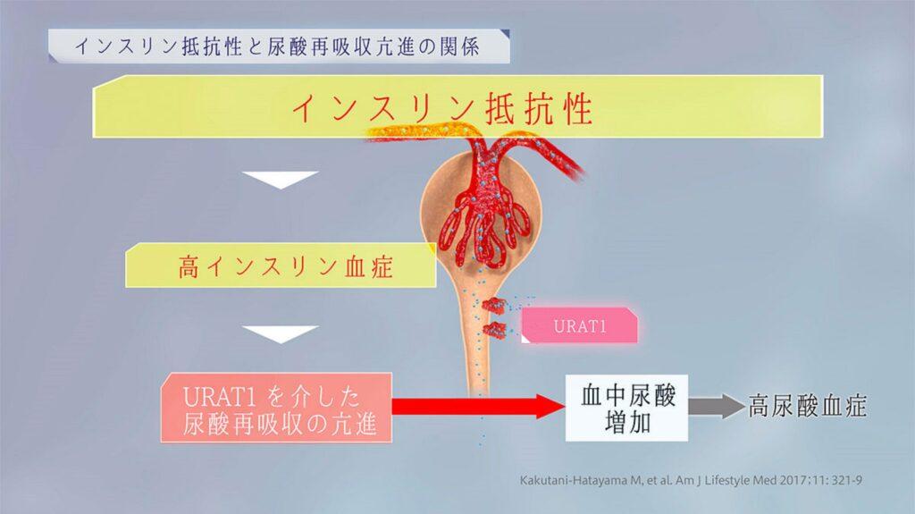内臓脂肪の蓄積とインスリン抵抗性が結石形成に関与することを示す図