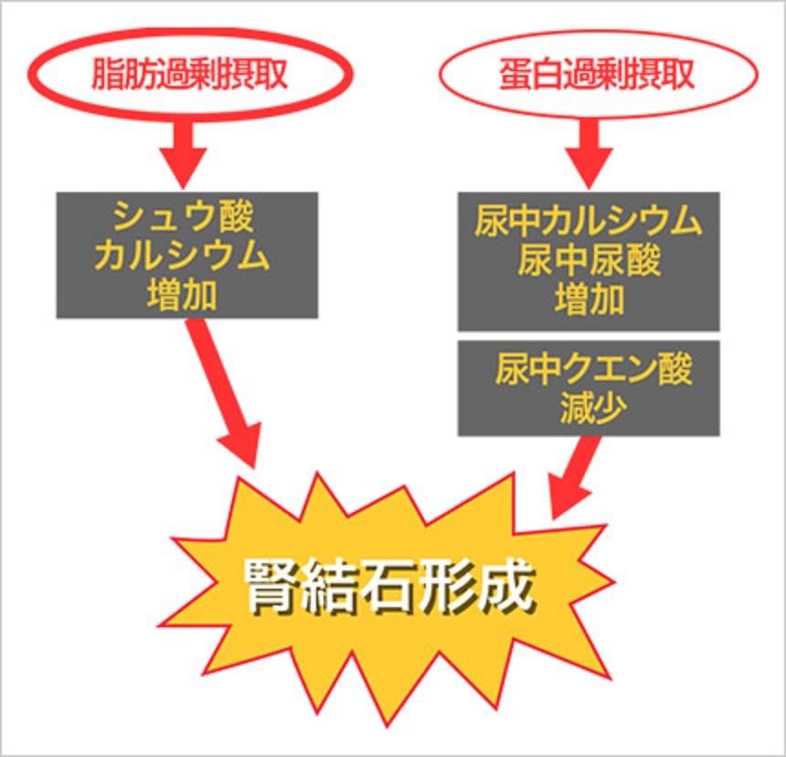タンパク 脂肪の過剰摂取が結石形成を誘導することを示す図