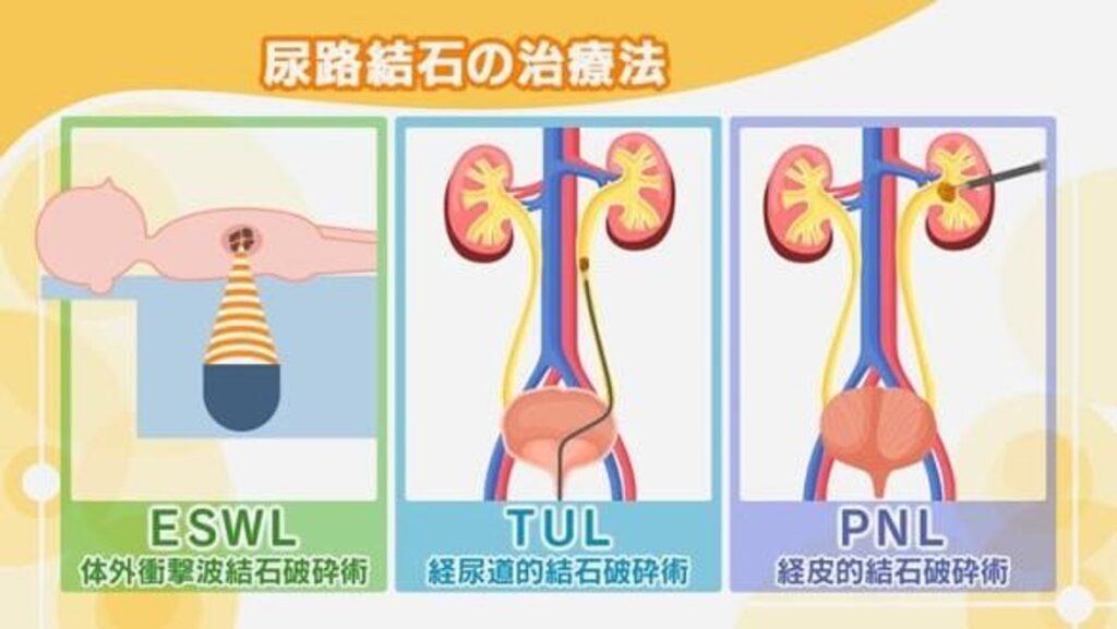 各種外科的処置についてまとめた図