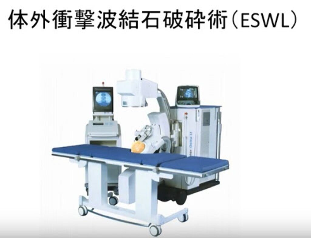 ESWLの装置