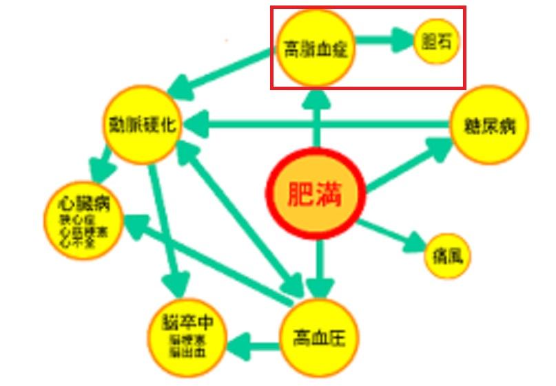 肥満と胆石の関係をまとめた図