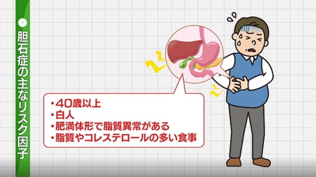胆石のリスク因子を説明した図