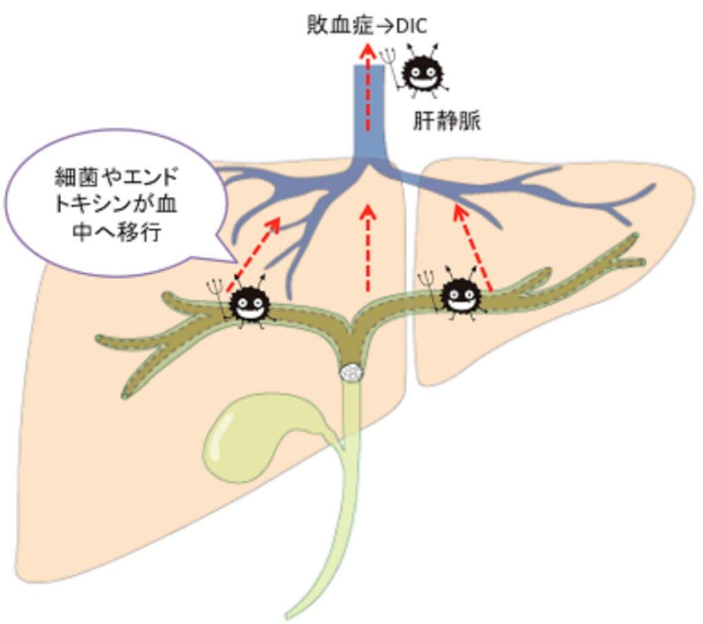 急性閉塞性化膿性胆管炎で起きている病態についてまとめた図