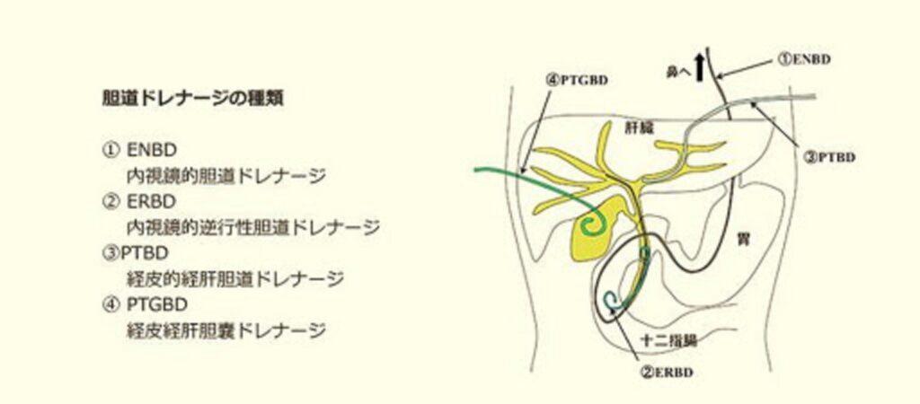 胆道ドレナージの方法をまとめた表