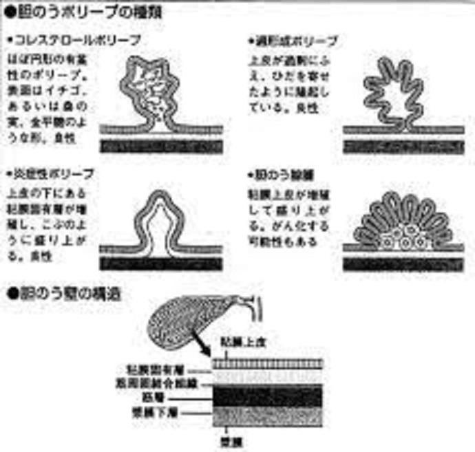 胆のうポリープの種類をまとめた図