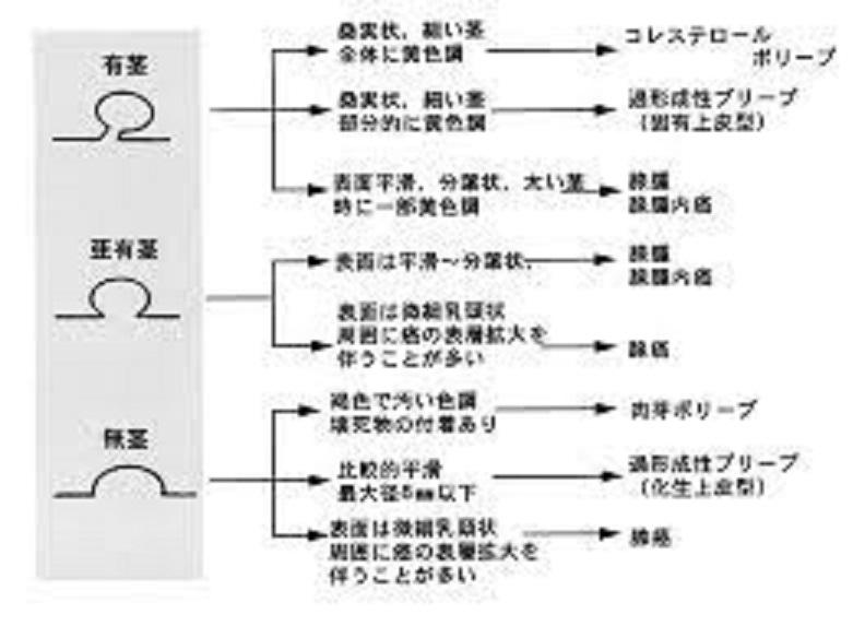 形による胆のうポリープの種類をまとめた図