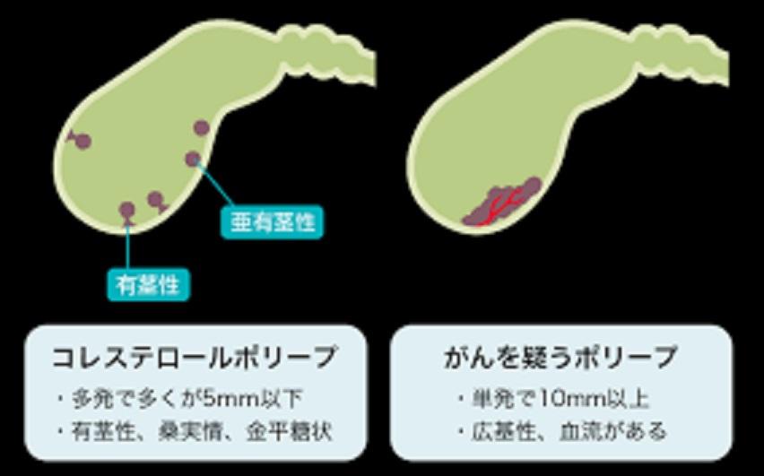 がんを疑うポリープの特徴をまとめた図