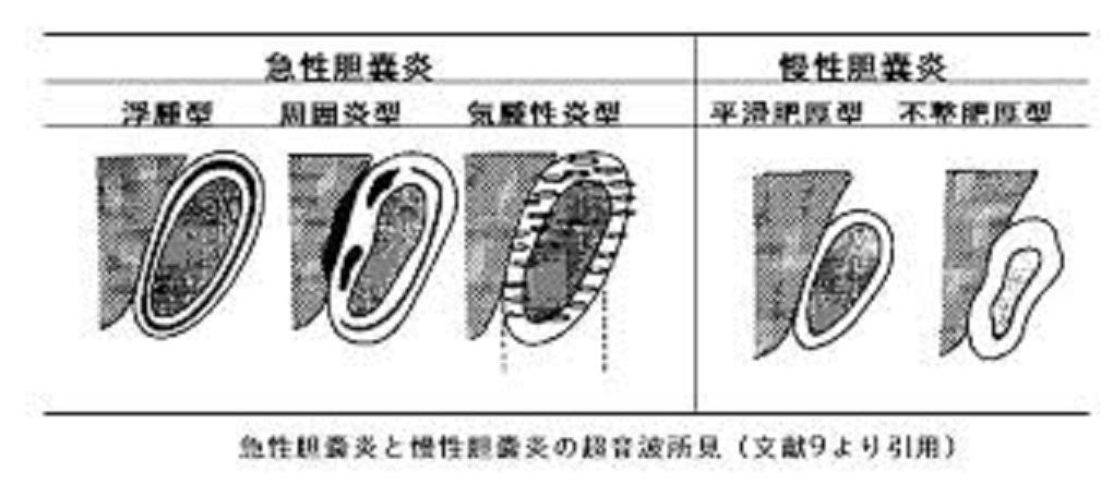急性胆のう炎 慢性胆のう炎のエコー所見を比較した図